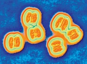 micrograph of meningitis bacteria