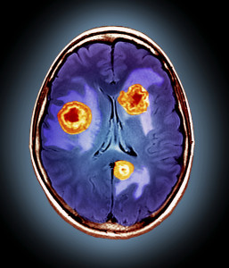 Secondary brain cancer, MRI scan