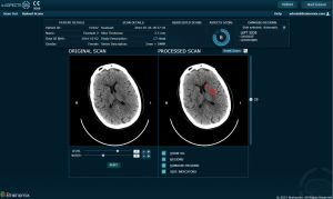 Image from Brainomix launches revolutionary e-ASPECTS software designed to improve outcomes for stroke patients News Article