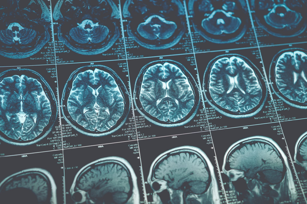 Oxford Brain Diagnostics sets out with the goal of improving